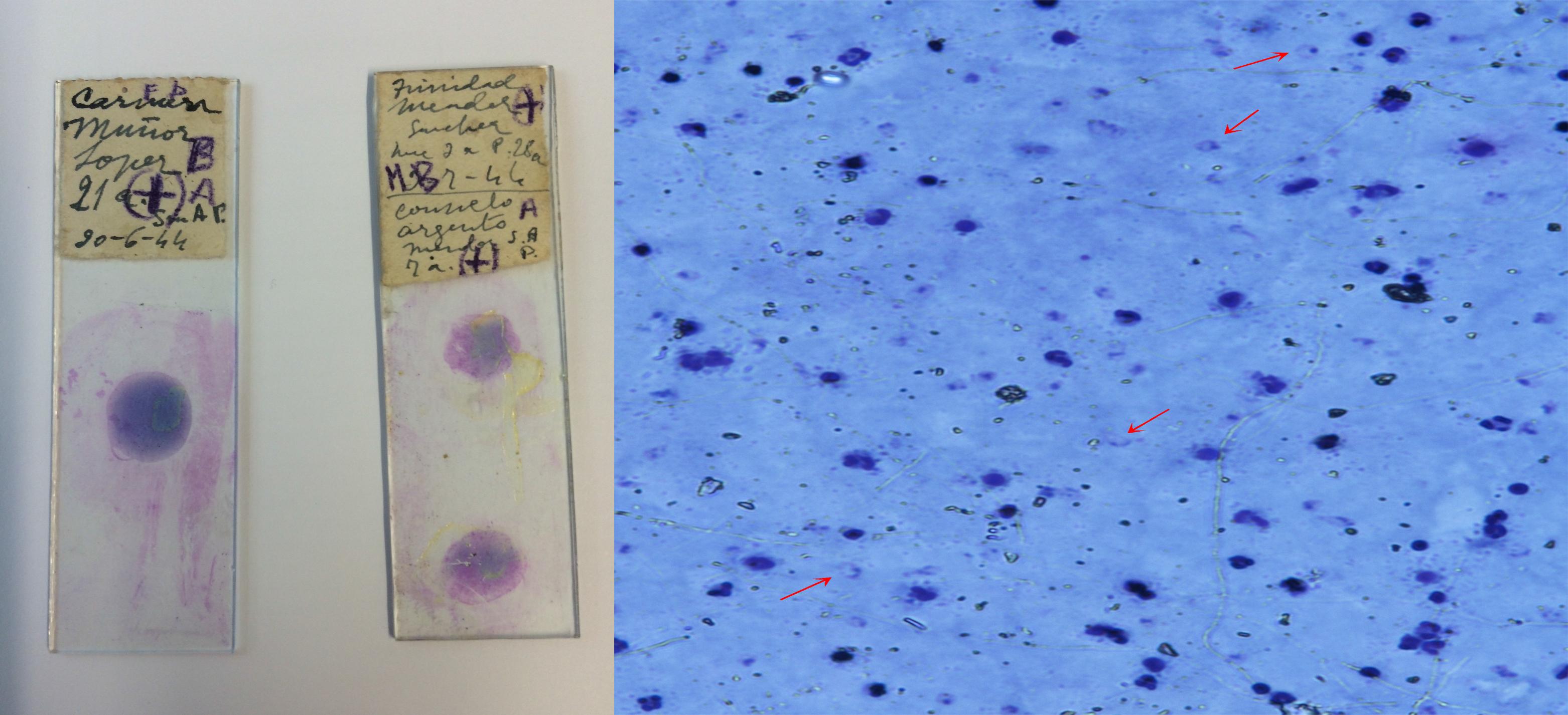 Recuperan ADN de la malaria europea para conocer las mutaciones que la hacen resistente a diferentes fármacos