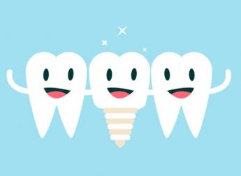 clínica implantes dentales en Madrid