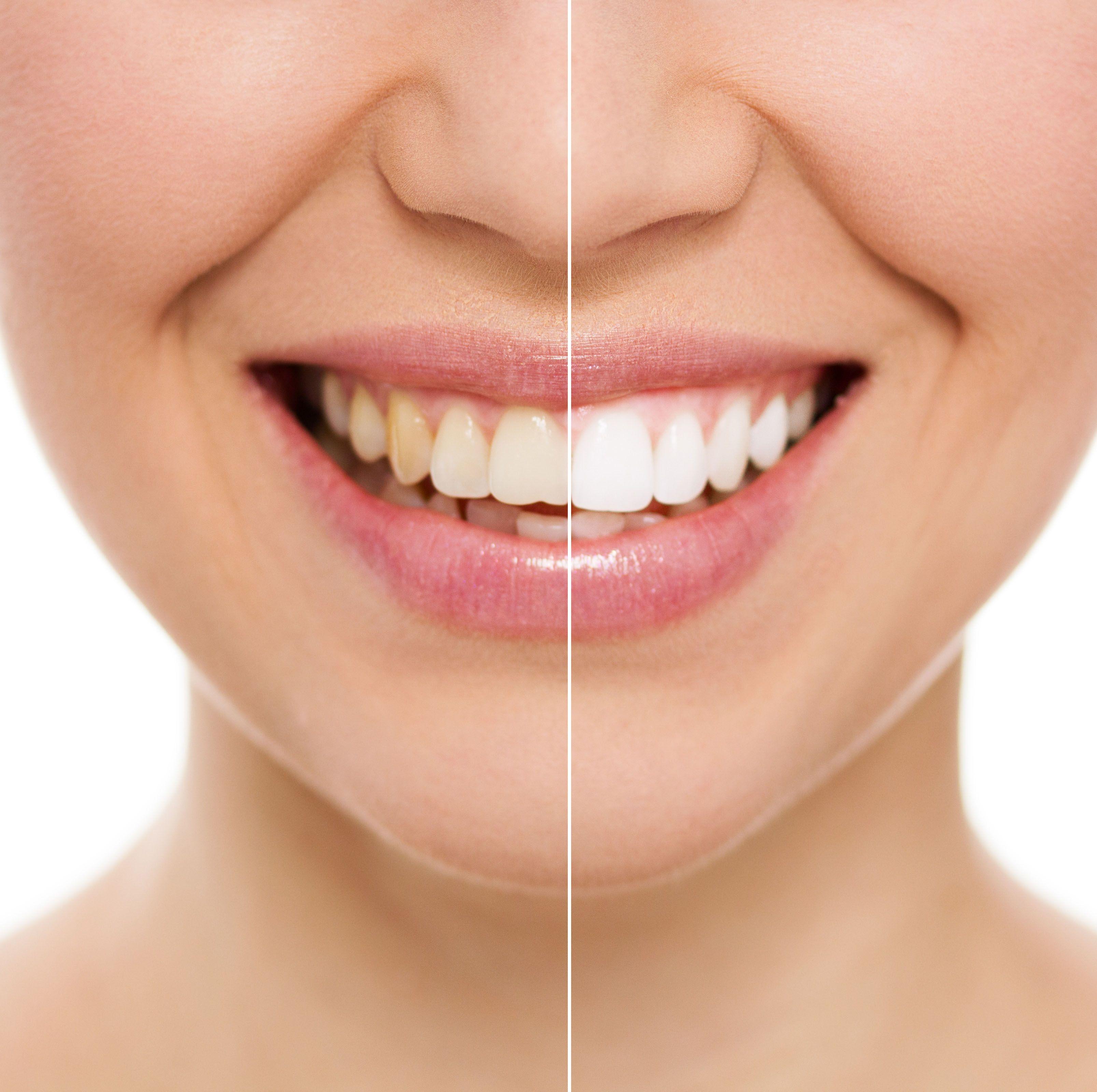 10 mitos y verdades sobre el blanqueamiento dental