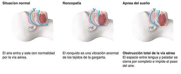Fotografia Diagnóstico apnea del sueño