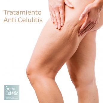 Tratamiento Anti Celulitis