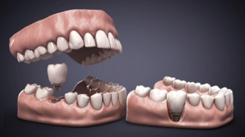 Recreación 3D de dentadura e implante