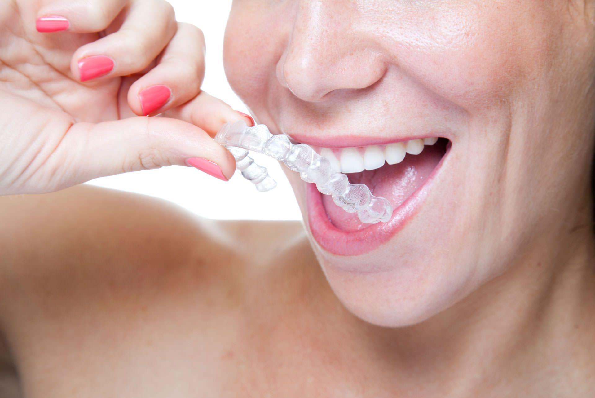 Foto de Ventajas de Invisalign frente ortodoncia tradicional