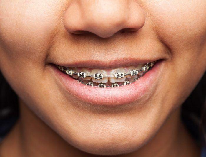 Coinsol Dental, profesionales de la ortodoncia en Sevilla: sobre unos dientes bien colocados