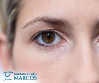 Clínica Ocular Marcos