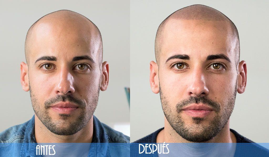 Tatuaje de cejas antes y despues de adelgazar