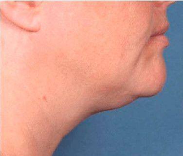 Foto de reducción de papada sin cirugia con Belkyra