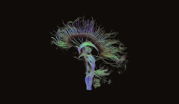 Foto de curso neuropsicología
