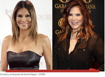 Foto de El antes y después de Ivonne Reyes