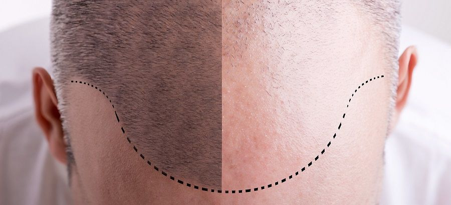 Resultado de imagen de pelo turquia