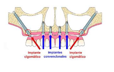 Foto de Implantes zigomáticos