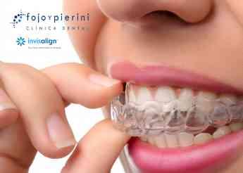 Ortodoncia invisible, sistema Invisalign®