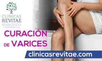 Franquicias Clínicas de medicina estética y regenerativa Revitae