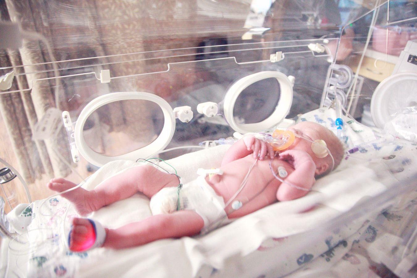 Foto de Bebés Prematuros