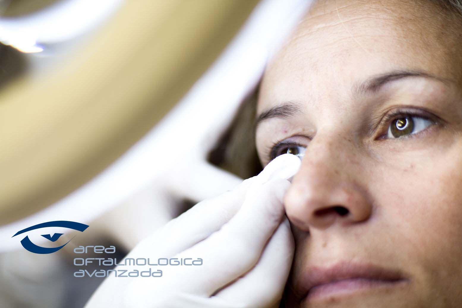 Foto de Tratamiento de ojo seco en Área Oftalmológica Avanzada