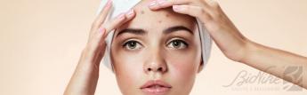 Eliminar el acné en adultos