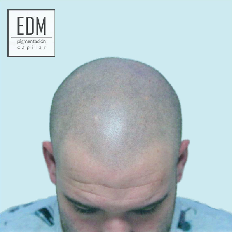 EDM Capilar