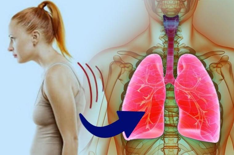 Foto de ¿Una mala postura puede afectar la capacidad pulmonar?
