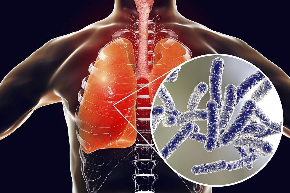 Rentokil Initial recuerda la necesidad de mantener controles y tratamientos preventivos contra la Legionella