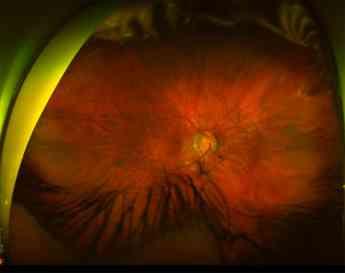 Desprendimiento de retina para vitrectomía