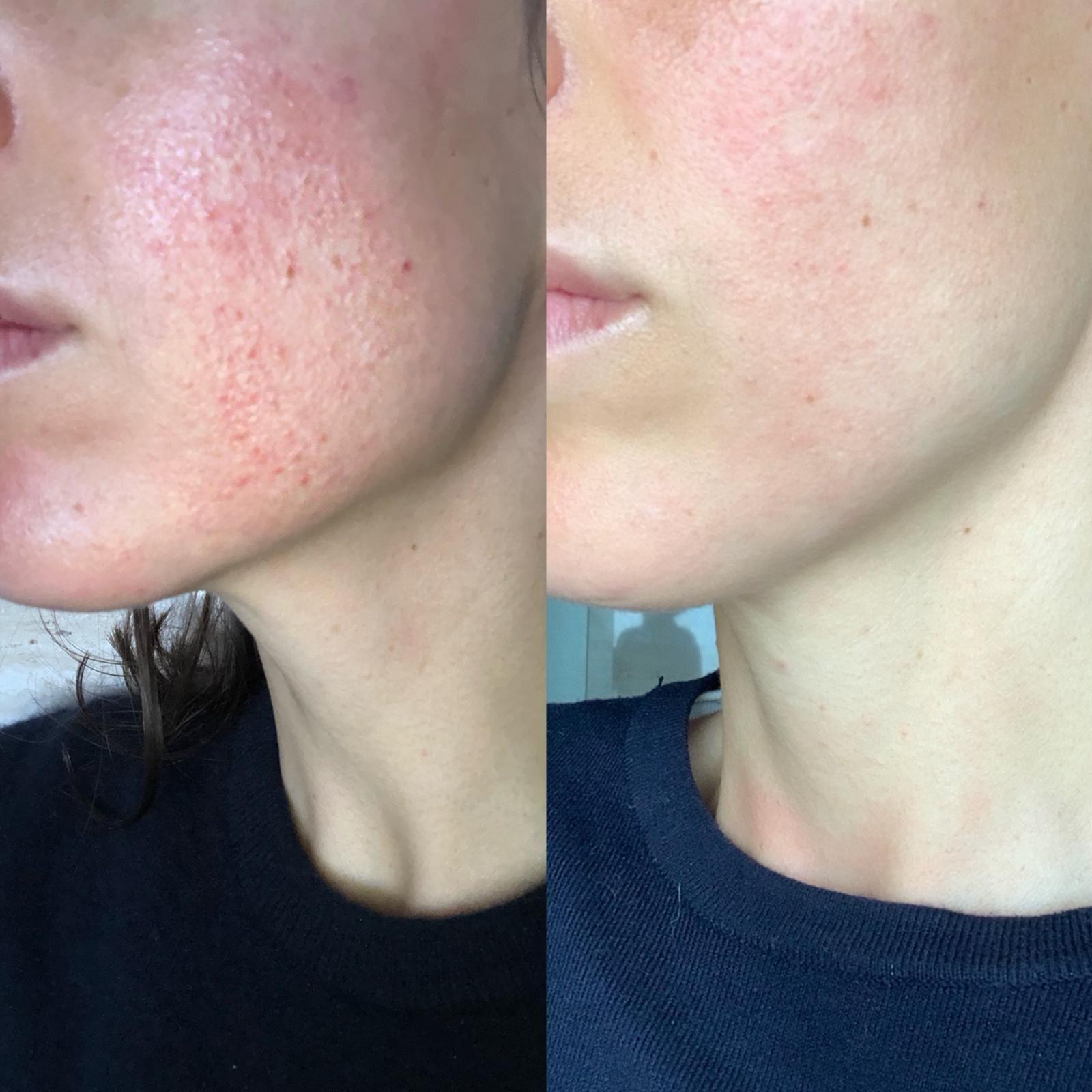 Foto de Antes y después de aplicar serum y crema de la gama Hemp &