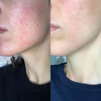 Antes y después de aplicar serum y crema de la gama Hemp & CBD Line de Beauté Mediterránea
