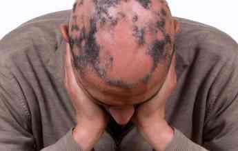 Efectos secundarios trasplante capilar