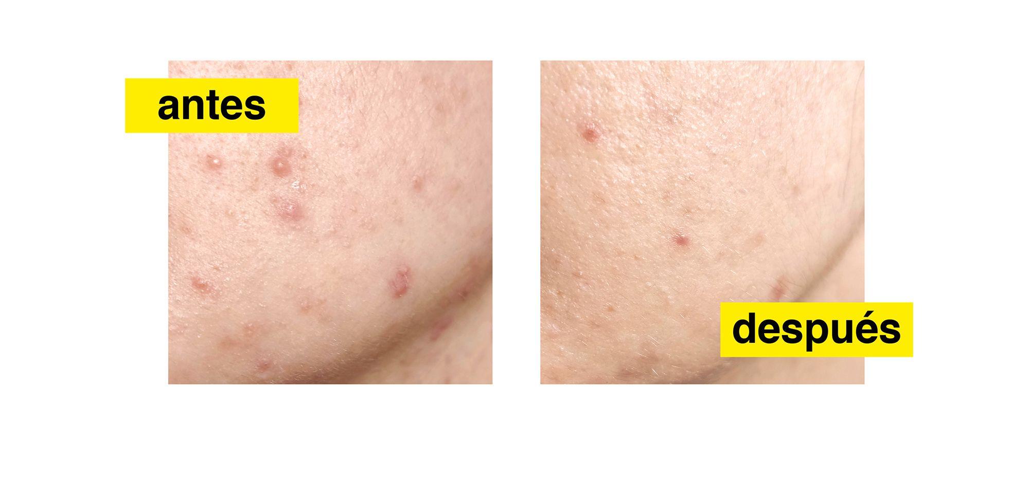 Fotografia Resultados visibles del tratamiento Acnemy
