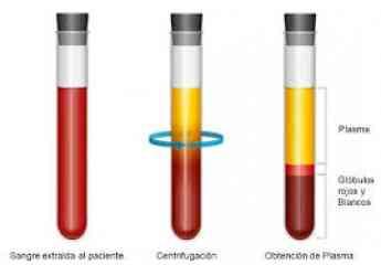 Plasma enriquecido en factores de crecimiento para la artrosis