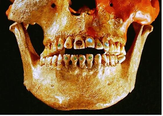Fotografia Historia de la odontologia